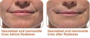 nasolabial cystemedicine