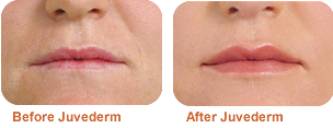 Juvederm: before/after photo