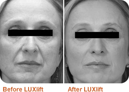 Before and after LUXlift facelift: photo
