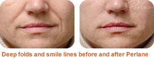 Perlane treatment for nasolabial folds and smile lines: before/after photo