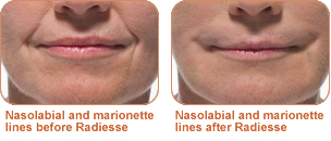 Radiesse treatment for Nasolabial folds and marionette lines: before/after photo