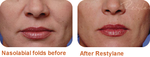 Restylane treatment for nasolabial folds: before/after photo
